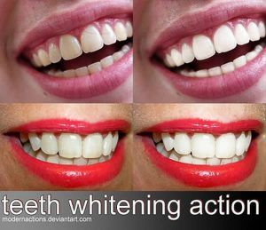 "action 056 ""TEETH WHITENING"""